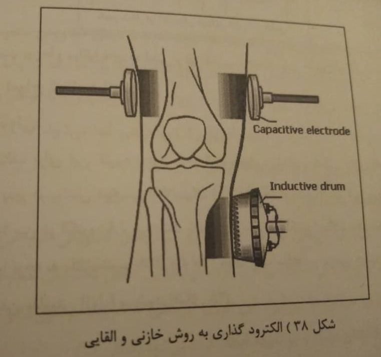 الکترود گذاری به روش خازنی و القایی در فیزیوتراپی شریعتی