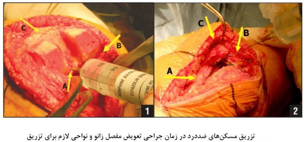 تزریق مسکن های ضددرد در زمان جراحی تعویض مفصل زانو و نواحی لازم برای تزریق