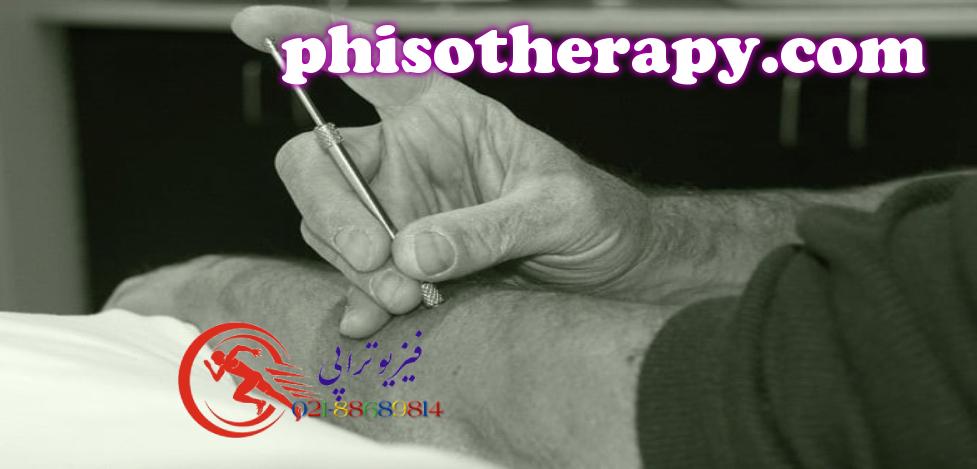 فیزیوتراپی اسکلتی عضلانی