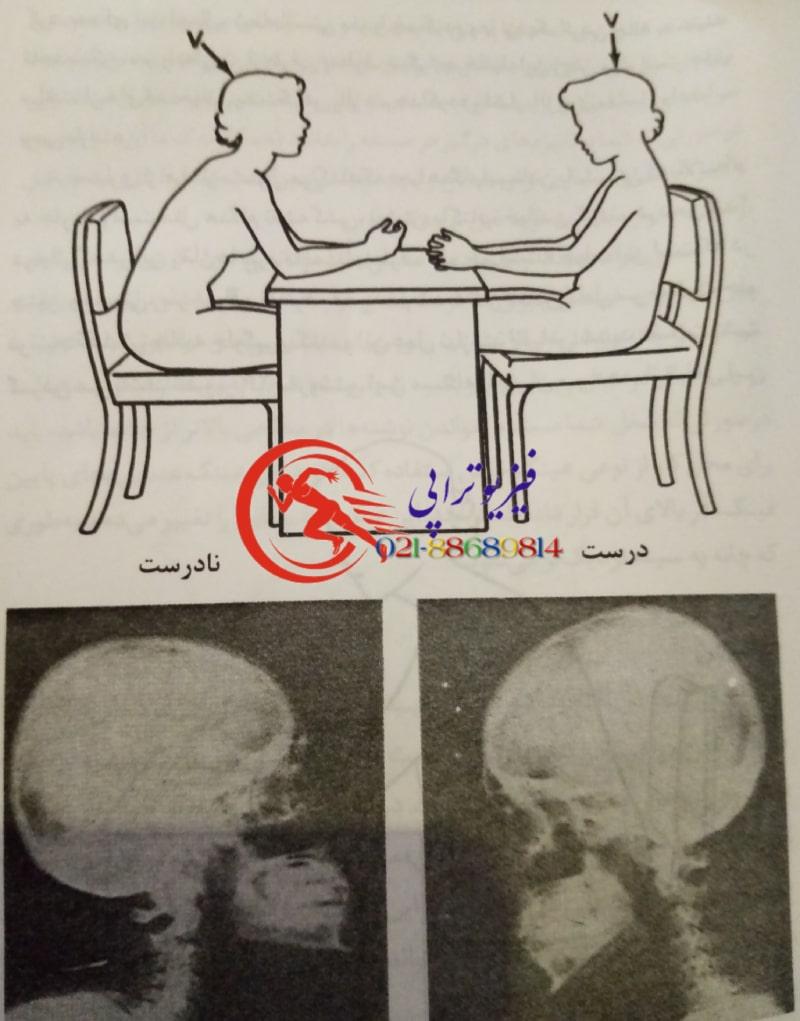 راهکار و تمرینات طلایی درمان گردن درد