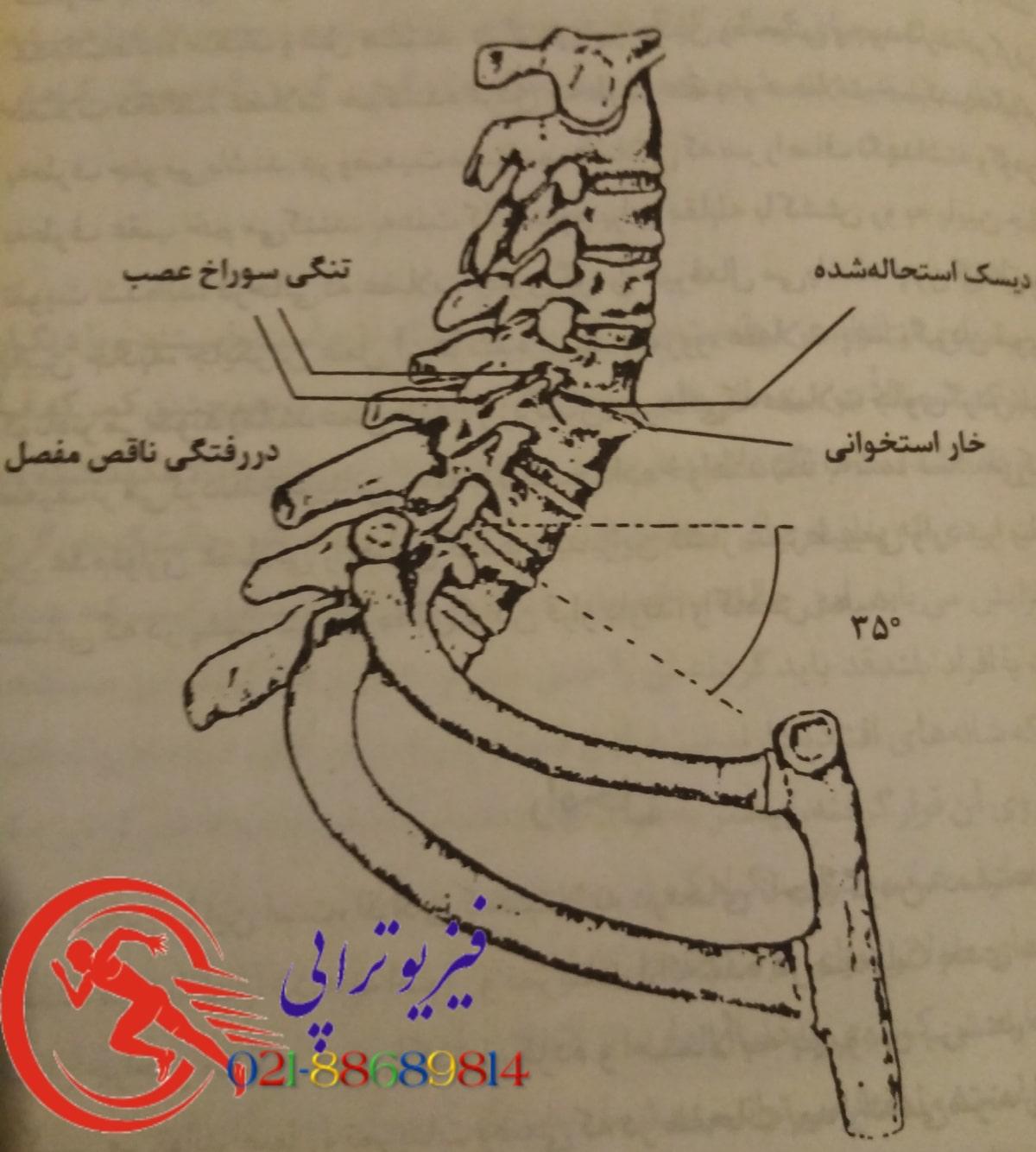 گردن درد ۱